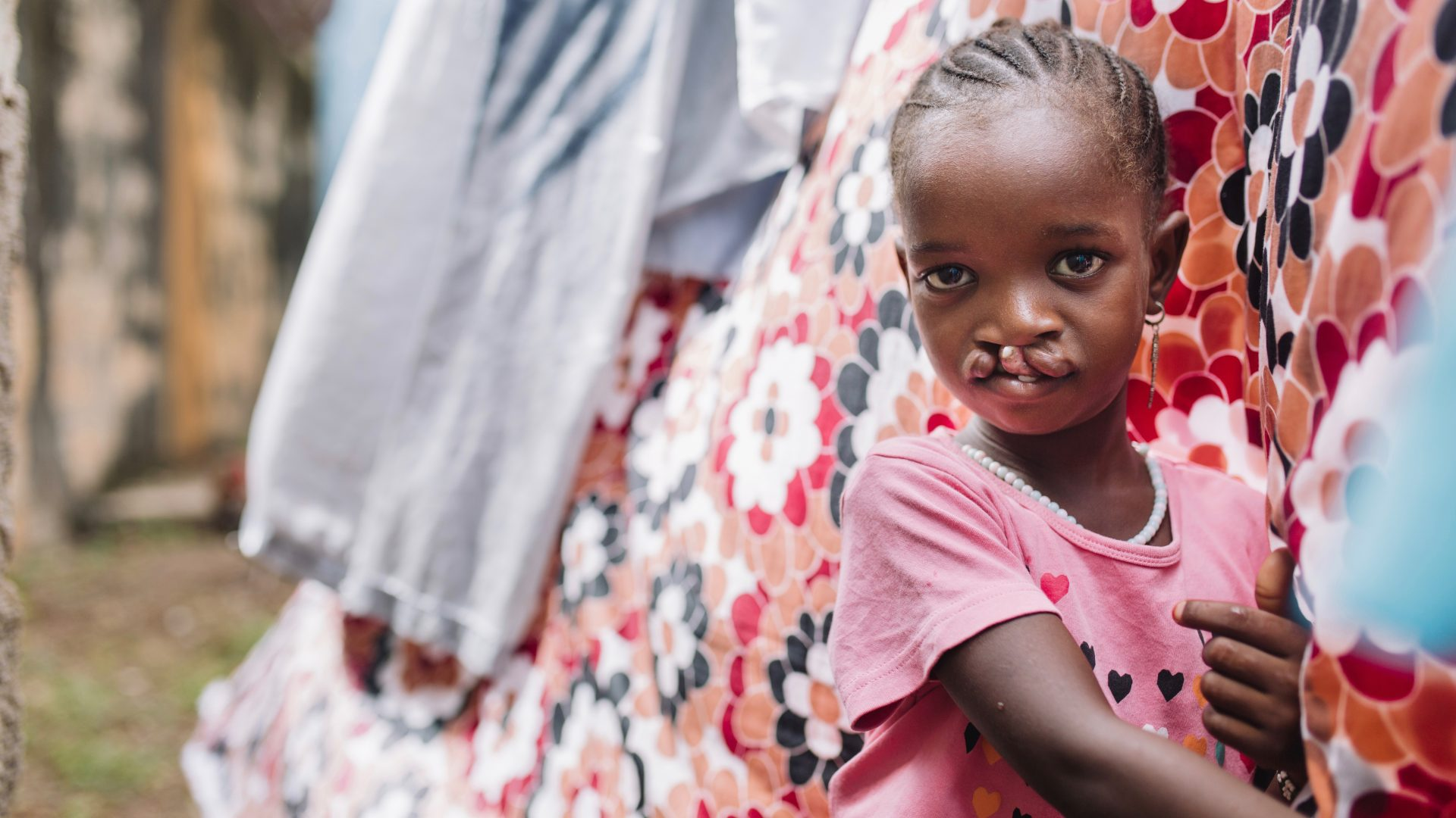 Aminata, cleft lip patient, at home before surgery.