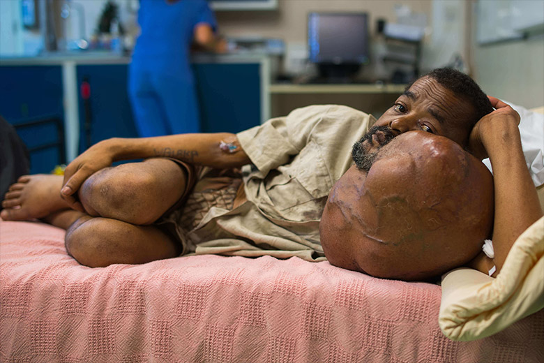 Sambany_mgb16203_madagascar_mercyships_tumor_ziekenhuisschip_patient_06