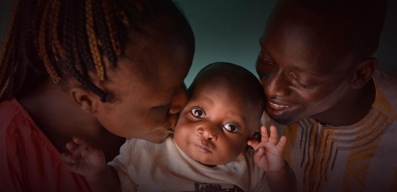 Patient-prunel-mercyships-verhalen-ziekenhuisschip-open-lip-operatie-benin-afrika