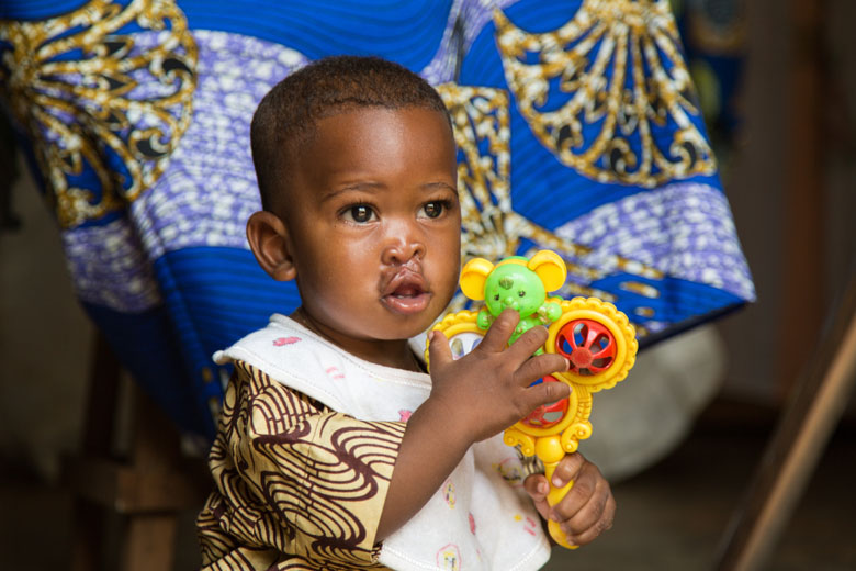 Israel's plays at home, after surgery to repair his cleft lip.
