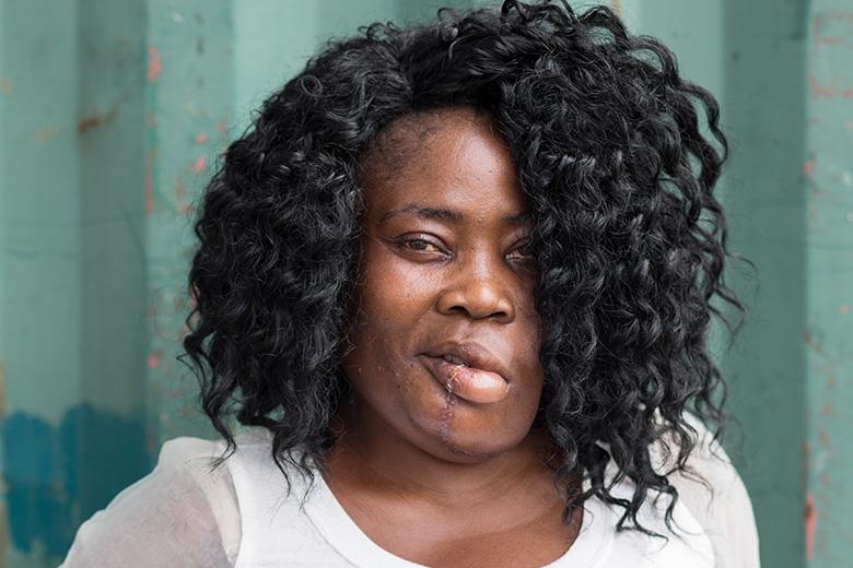 Sonia-lokale-verpleegkundige-benin-patient-mercyships-ziekenhuisschip-na-foto