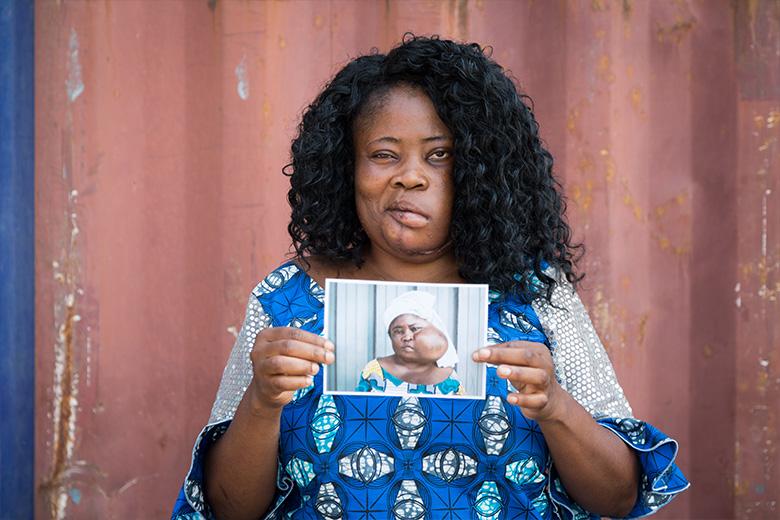 Sonia-lokale-verpleegkundige-benin-patient-mercyships-ziekenhuisschip-voor-en-na-foto