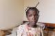 monique-cataract-patient-is-blind-en-kan-niet-naar-school-01